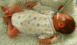Weltfrühgeborenentag am 17. November 2014