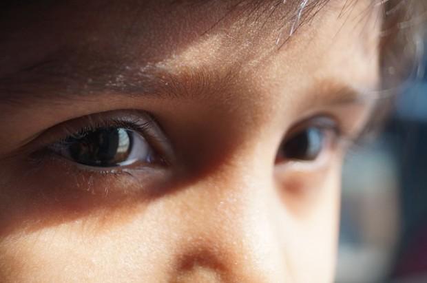 Eltern sollten auf Anzeichen für Sehprobleme bei Kindern achten