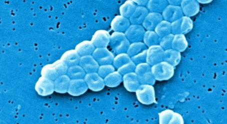 Multiresistentes Bakterium: Infektion von zwölf Patienten mit MRGN-Keim am Campus Kiel