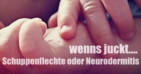 Schuppenflechte und Neurodermitis: Mit der Kinderhaut zum Hautarzt